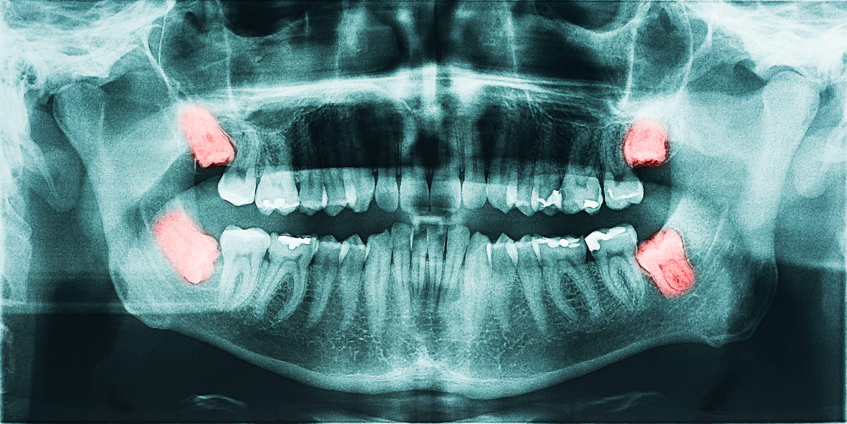 Oral and maxillofacial surgery - Omni Dental
