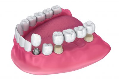 Options to Replace Teeth